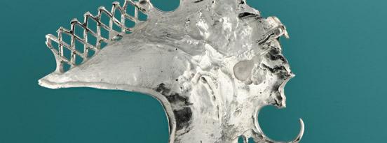 Denture Plate