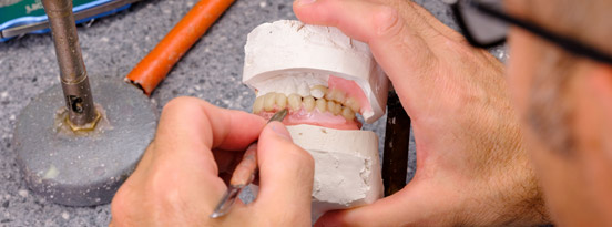 denture gums build